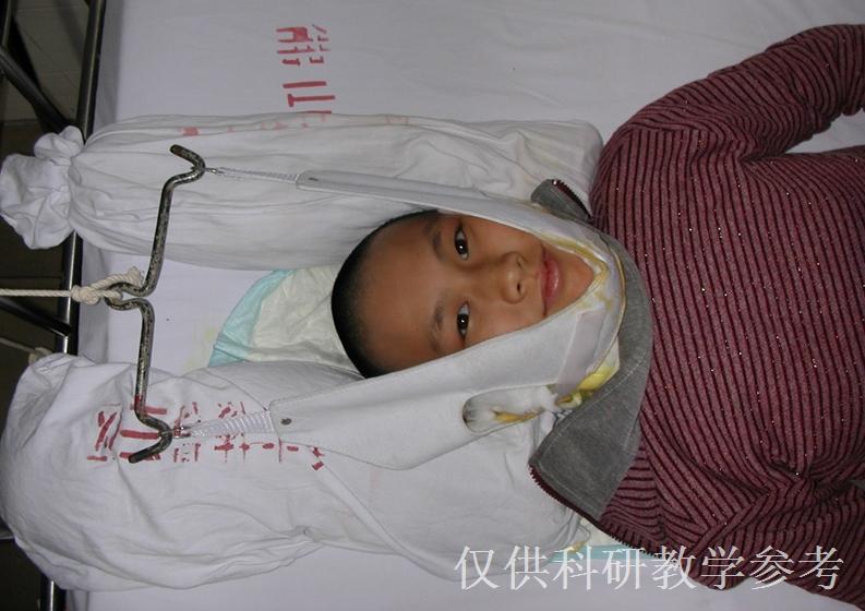 婴儿斜颈图片_骨科医师之家