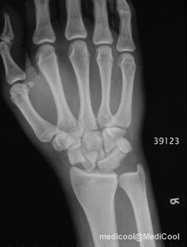 bilateral trans scaphoid perilunate fracture dislocation Trans-scaphoid perilunate fracture-dislocations often accompany a comminuted fracture of the scaphoid and disruptions of the intercarpal ligaments, and bone union and ligament healing time is delayed  a unique case of bilateral trans-scaphoid perilunate dislocation with dislocation of lunate into the forearm.